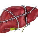 The Silent Liver Killer
